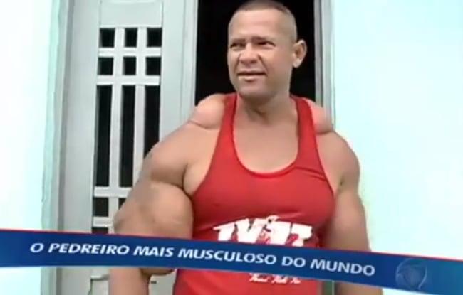 O dia em que Arlindo Anomalia apareceu na TV