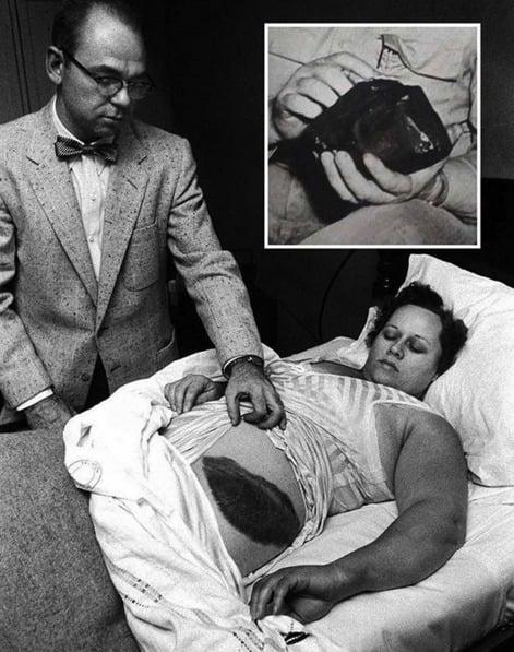 Um meteorito caiu na casa de Ann Hodges, no Alabama, em 1954. O ferimento que você vê foi o resultado do contato dele com a dona de casa, a primeira cidadã norte-americana a sofrer danos de um meteorito
