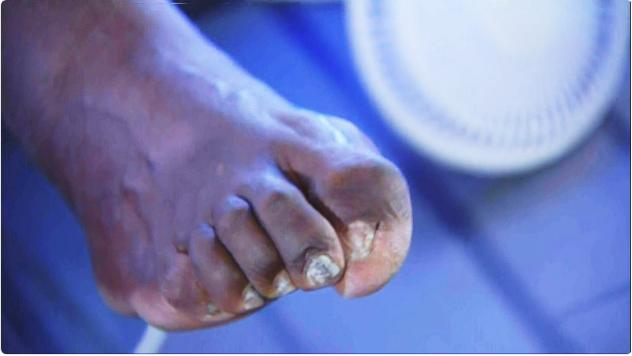Dedos do pé de Shaquille O´Neal