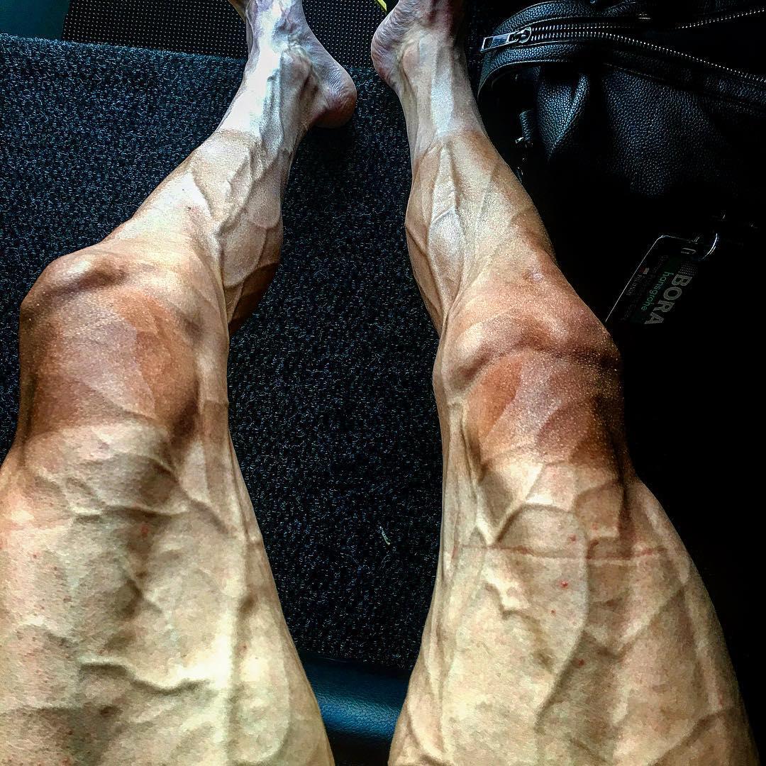 Pernas do ciclista Poljanski após o Tour de France