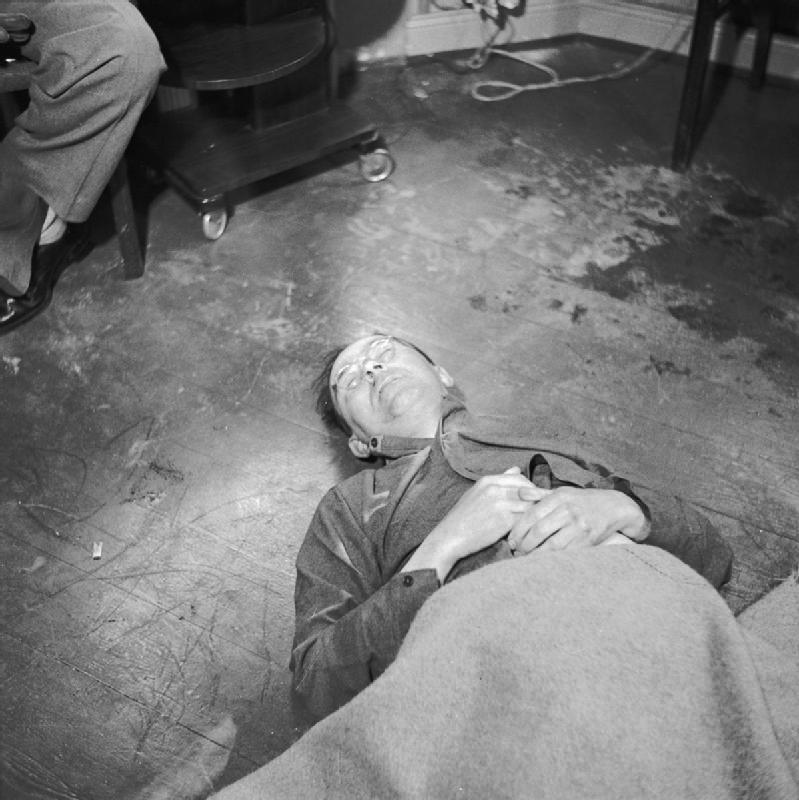 E aqui, o corpo do mesmo Himmler após cometer suicídio por envenenamento de cianureto, em 1945