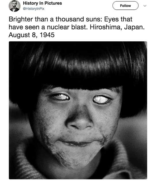 Esta jovem sobreviveu ao ataque de Hiroshima, no Japão, em 1945. No entanto, os efeitos da bomba atômica a deixou completamente cega
