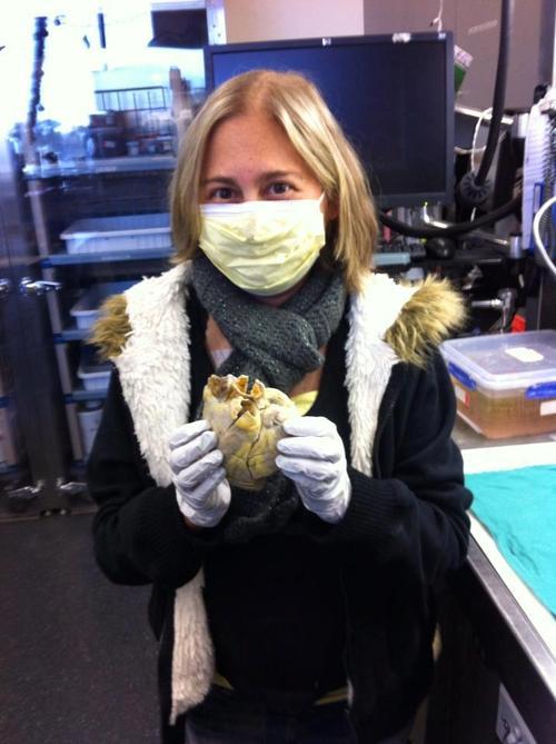 Penny, uma receptora de órgão, segurando seu próprio coração com as mãos