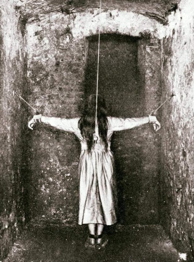 Esta é uma foto real de tratamento feito numa instituição que cuidava de doenças mentais em 1890