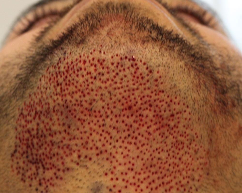 Caso você não tenha visto, é assim que fica um rosto ao fazer transplante de barba