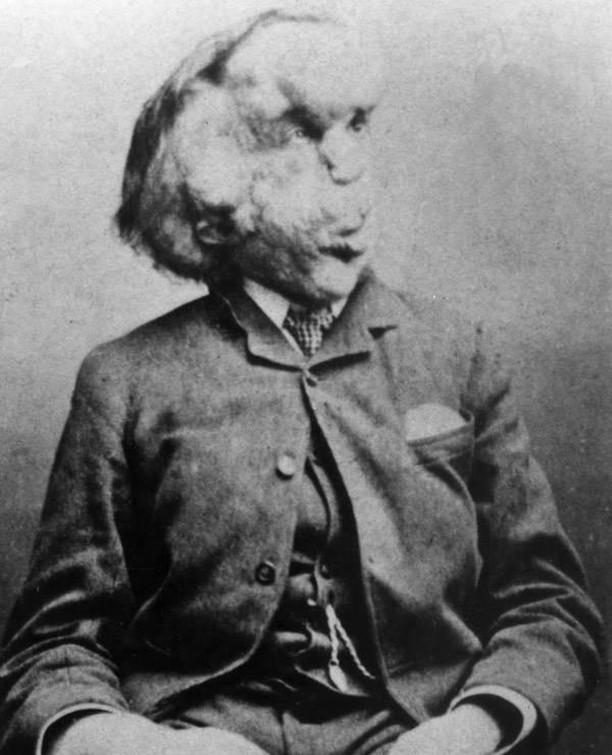 Joseph Merrick, também conhecido como O Homem Elefante, 1889