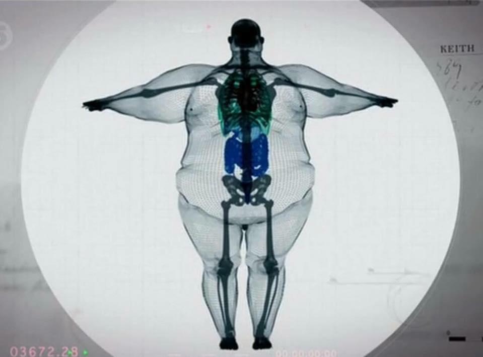 Raio-x de um homem de 317 quilos