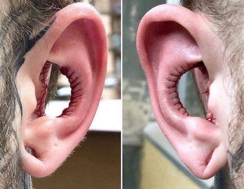 Algumas pessoas estão removendo parte das orelhas em uma nova tendência de modificação corporal. O procedimento é chamado de remoção de concha