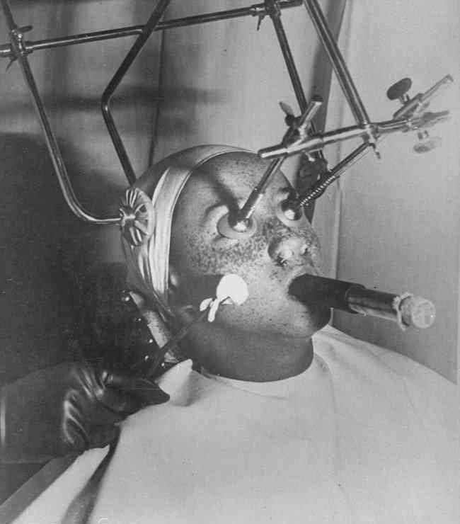 Paciente americano passando por tratamento bizarro anti-sardas, em 1933