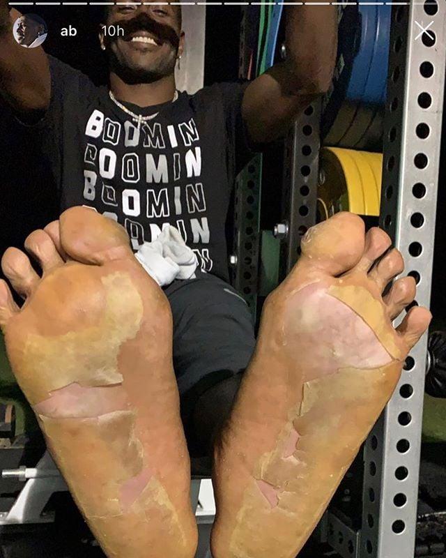 Pés do jogador de futebol americano Antonio Brow após sessão de crioterapia, procedimento no qual se aplica baixas temperaturas em regiões locais do corpo