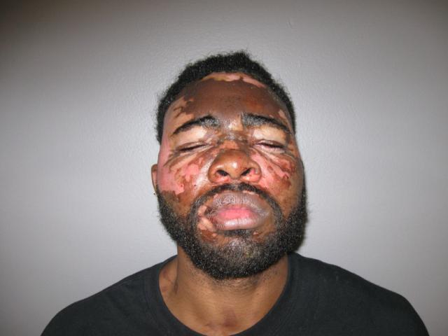 Uma mulher no Alabama espantou um intruso armado atirando um pote de gordura quente nele, resultando em queimaduras significativas em seu rosto