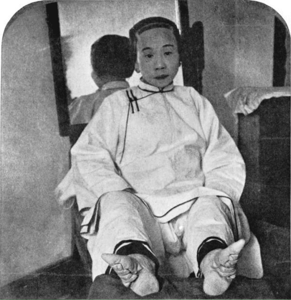 Senhora chinesa cujos pés estavam amarrados desde a infância. Esse procedimento tinha o objetivo de distinguir as meninas de classe alta das demais
