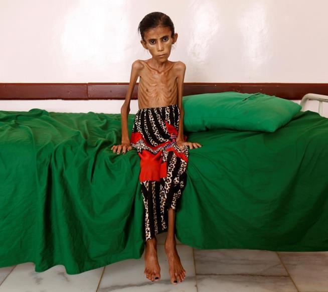 Fatima Ibrahim Hadi, de 12 anos, pesando apenas dez quilos. Ela sofria de desnutrição e foi internada numa clínica de Aslam, na província de Haijah, noroeste do Iêmen