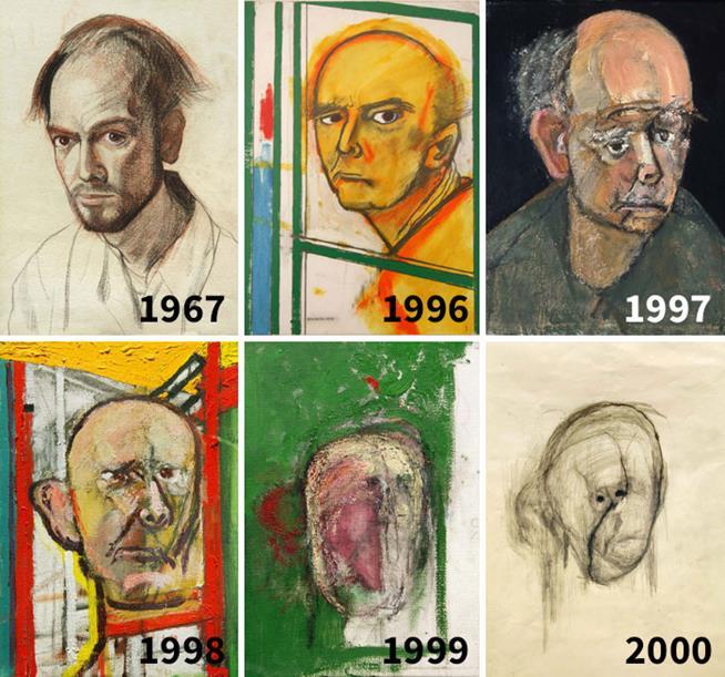William Utermohlen foi diagnosticado com Alzheimer. Ele começou a fazer seu autorretrato até não conseguir mais reconhecer seu próprio rosto