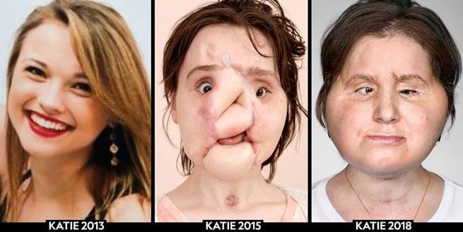 Esta é a evolução do rosto de Katie antes e após os episódios descritos na foto anterior
