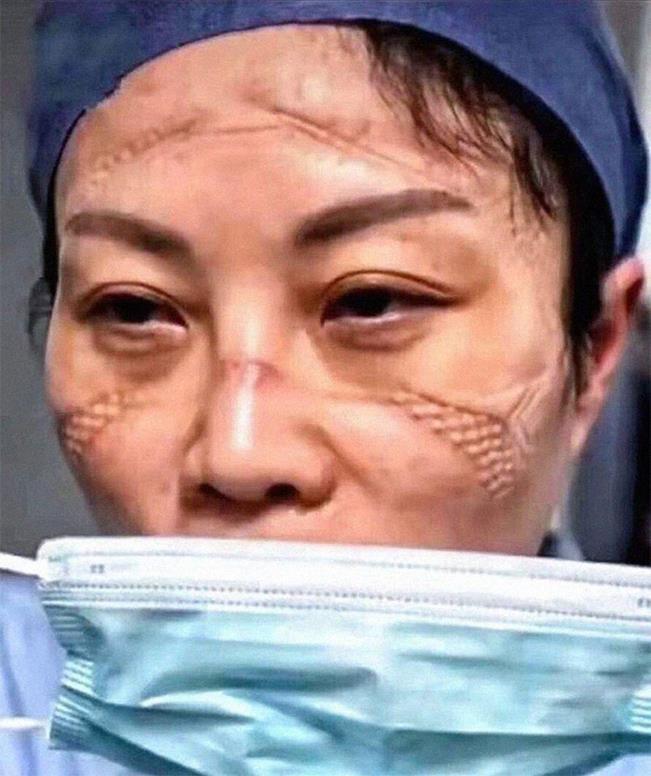 Enfermeira depois de um turno inteiro atendendo pacientes vítima do coronavírus