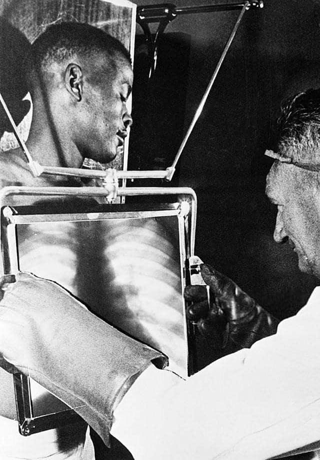 Trabalhadores da mina De Beer são radiografados no final de cada turno de trabalho, antes de deixar as minas. Kimberly, África do Sul, 1954