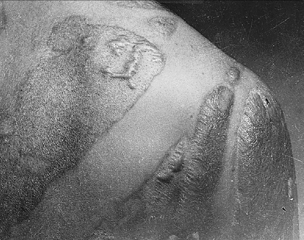 Cicatrizes deixadas numa vítima de Hiroshima, após lançamento da bomba