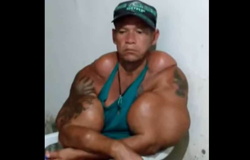 Aos 50 anos, Arlindo Anomalia pede ajuda para remover óleo dos braços