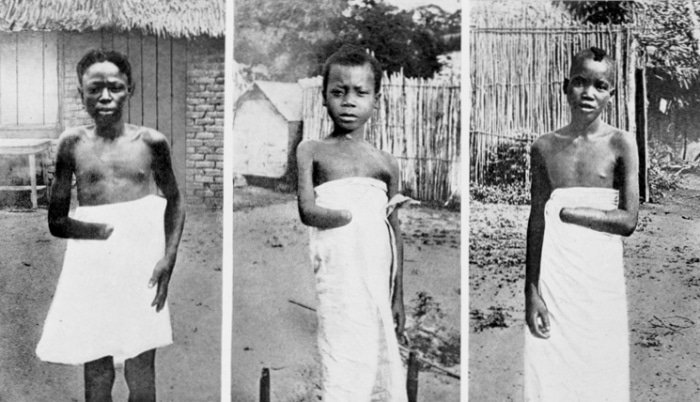 Criança do Congo Belga por volta de 1900. Se não voltassem com borracha suficiente para o dia, suas mãos eram decepadas. O rei belga Leopoldo II transformou um gigantesco pedaço da África em seu latifúndio, no qual escravizou seu povo e deixou um legado de misérie que perdura até os dias atuais