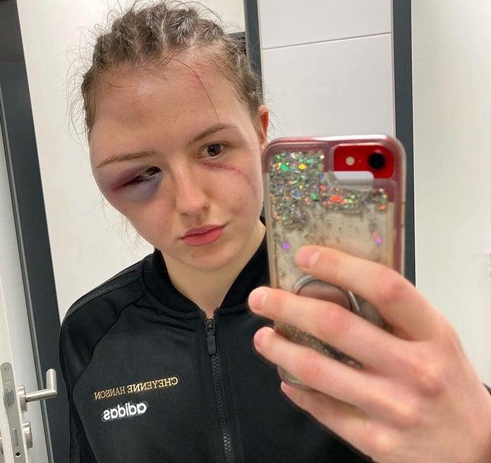Boxeadora alemã Cheyenne Hanson com hematomas decorrentes da sua luta contra Alina Zaitseva, da Ucrânia. Durante o combate, as duas atletas tiveram um choque de cabeças e a luta precisou ser interrompida graças aos seus ferimentos. Porém, Hanson foi declarada campeã por decisão técnica já que tinha acumulado mais pontos que a oponente.