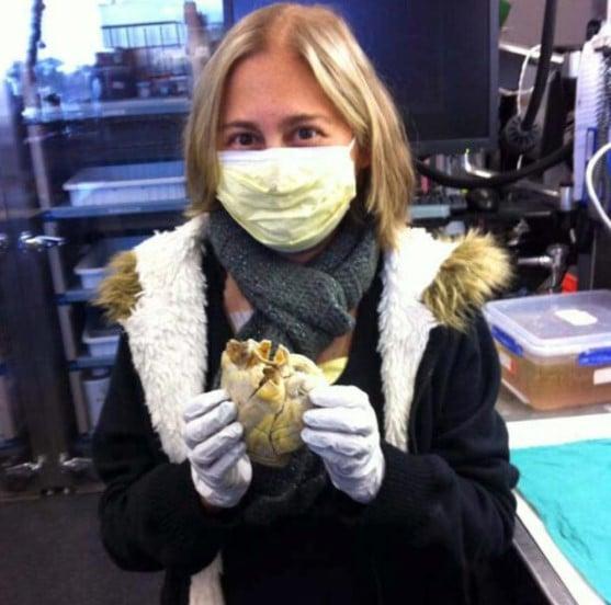 Penny Smith, 35, segura seu próprio coração após cirurgia de transplante de coração bem-sucedida. Setembro de 2012