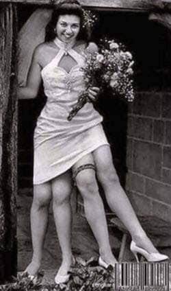 Josephine Myrtle Corbin foi uma artista americana que ficou conhecida por ter duplicação caudal. Isso fazia com que ela tivesse duas pélvis separadas, lado a lado, como resultado da divisão do eixo do corpo.