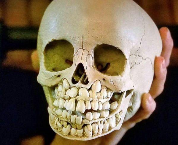 Esta é a aparência do crânio de uma criança antes de perder os dentes de leite