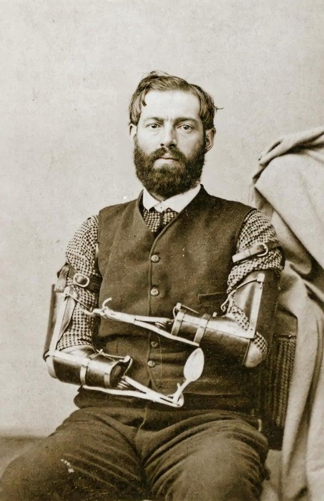 O soldado Samuel Decker, da 4ª Artilharia dos Estados Unidos, perdeu os braços enquanto carregava seu canhão, que explodiu prematuramente. Ele recebeu próteses que lhe permitiam escrever, pegar objetos do tamanho de um alfinete e, o mais importante, vestir-se e alimentar-se. Em 1862