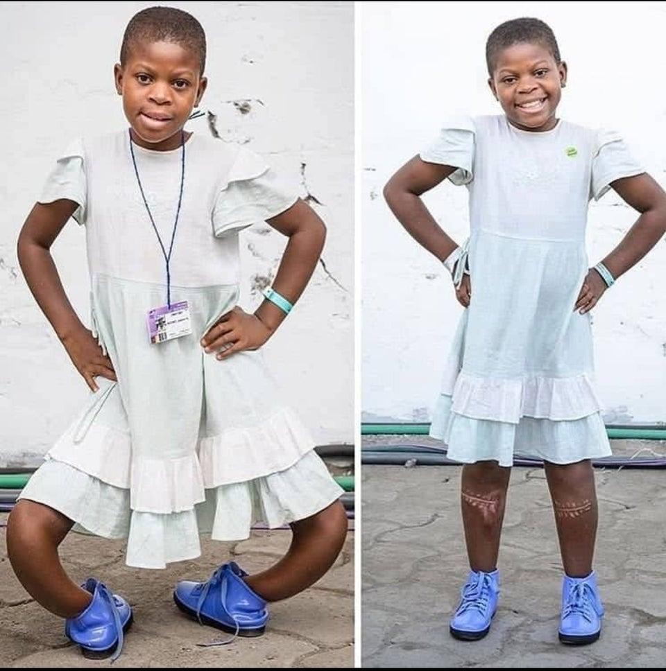 Antes e depois de cirurgia em uma criança que sofria com a doença de Blount, conhecida também como tíbia de vara, caracterizada por causar alterações no desenvolvimento do osso das pernas, provocando deformação progressiva