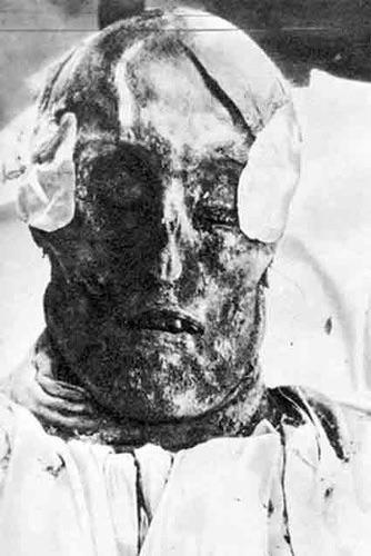 Cabeça mumificada de Carlos XII, da Suécia, que viveu entre 1697 e 1718, fotografada durante sua exumação, em 1917.