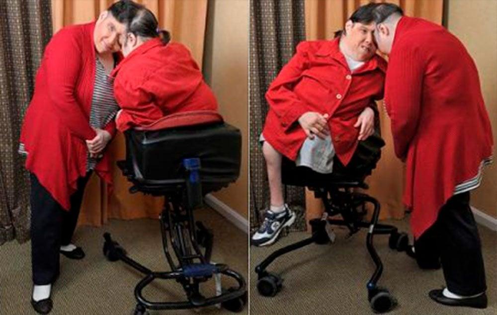 Lori e George Schappell, gêmeos xifópagos unicefálicos mais velhos do mundo. Atualmente com 59 anos, eles estão unidos pela lateral da cabeça, com os rostos virados em direções opostas. Lori nasceu fisicamente capaz, mas seu irmão possui um problema na espinha que impossibilita a mobilidade. Em 2007, George mudou seu nome nos documentos por se identificar como um homem trans.